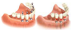Full Jaw Dental Implants with Fixed Bridge Packages