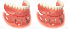 Mini Implants with Overdentures